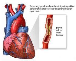 artery jantung tersumbat